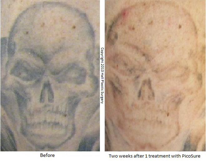 April 2018 best tattoo removal at home for Clean slate tattoo removal